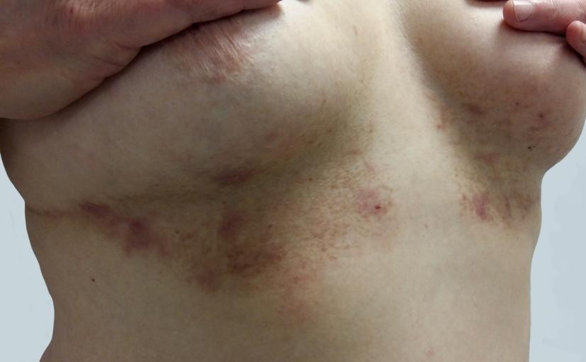 Brust intertrigo Home Remedies