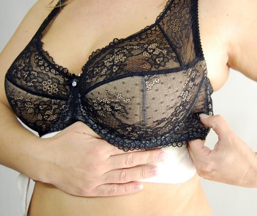 Hautausschlag auf der Brust - Was ist die Ursache?